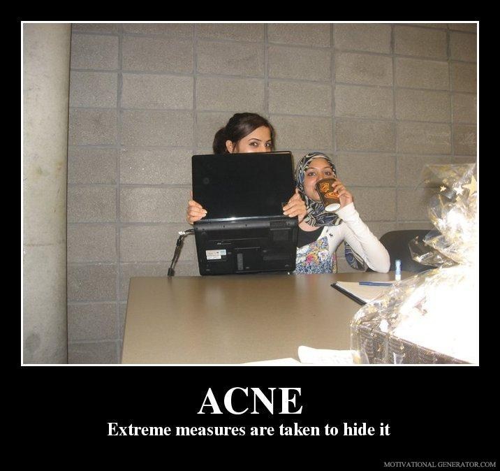 Acne-extreme-measures-are-taken-to-hide-it-45e2d1